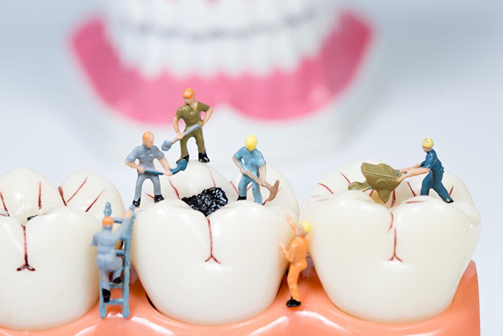 虫歯と歯周病の予防のためにできること